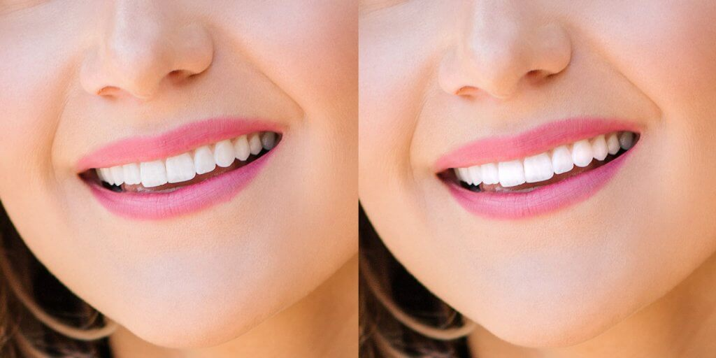 retouching-portraits-teeth